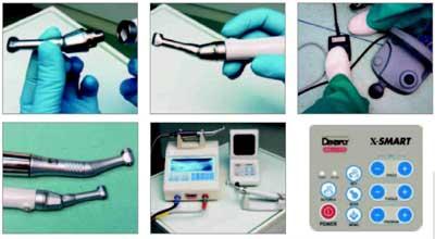 Dentsply X Smart инструкция - фото 8